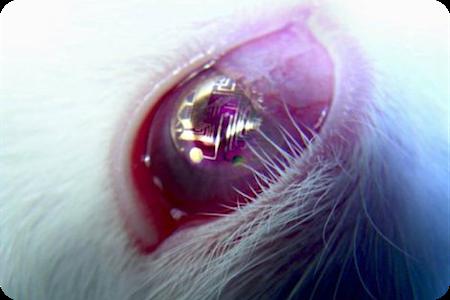 Un écran sur une lentille de contact
